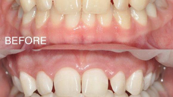 Безпечне відбілювання зубів