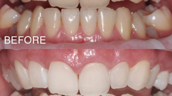 Whiteeeee teeth