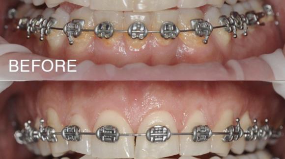 Важливість правильної гігієни ротової порожнини при ортодонтичному лікуванні.