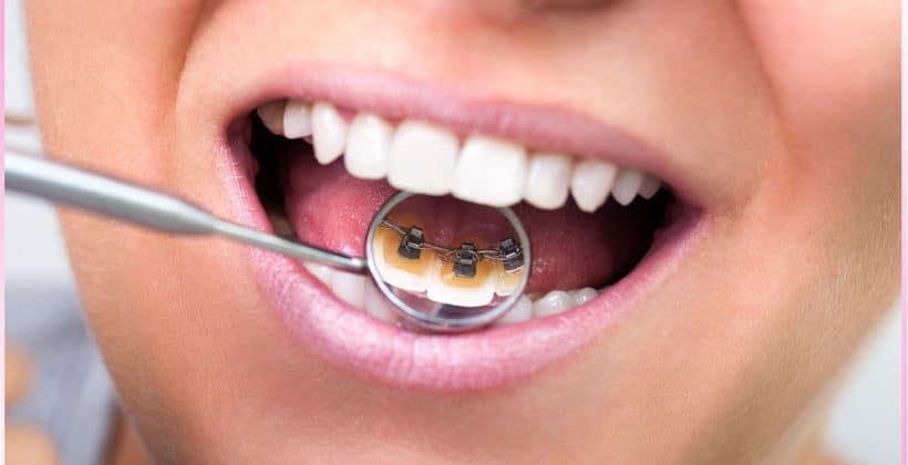 Чи потрібно ставити брекети на зуби?
