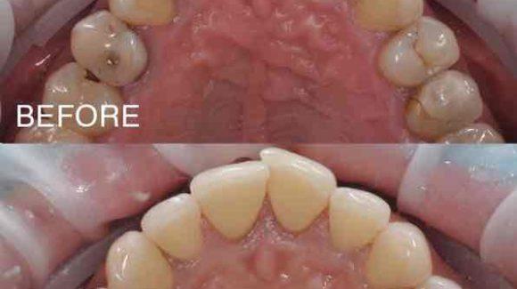Чи потрібна Вам професійна гігієна порожнини рота ?
