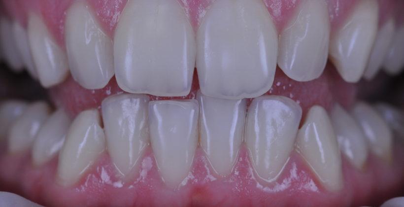 Зубна Емаль