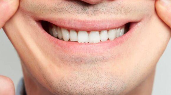 Навчився посміхатись так, щоб мої зуби не було видно…