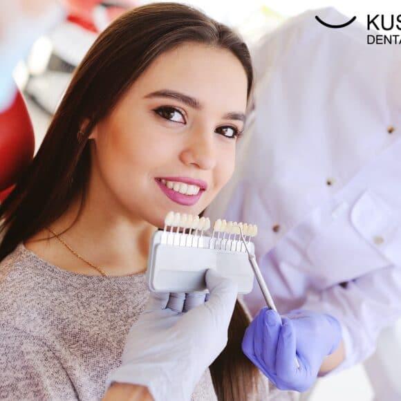 6 речей, на які ви повинні звернути увагу, перш ніж наважитись на стоматологічні вініри