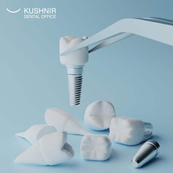 Чому не варто затягувати з установкою імплантату після видалення зуба?