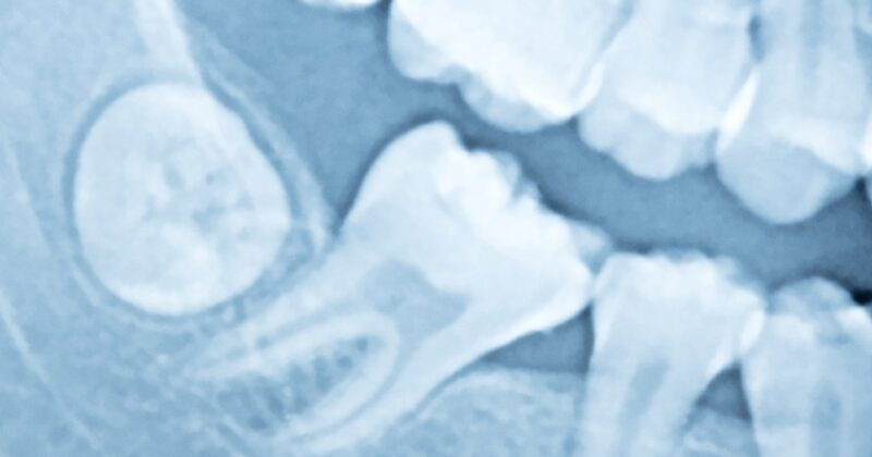 Зуби мудрості – це рудименти, які не несуть функціонального навантаження.