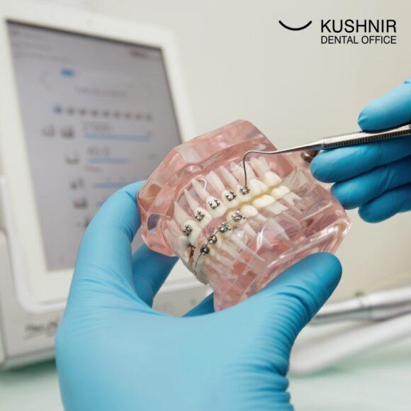 Брекети псують зуби? Під ними може з'явитися карієс?