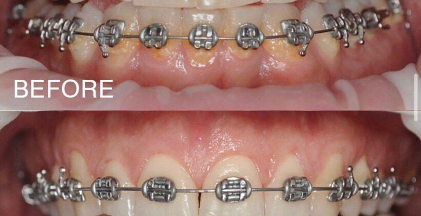 Гігієна ротової порожнини під час ортодонтичного лікування